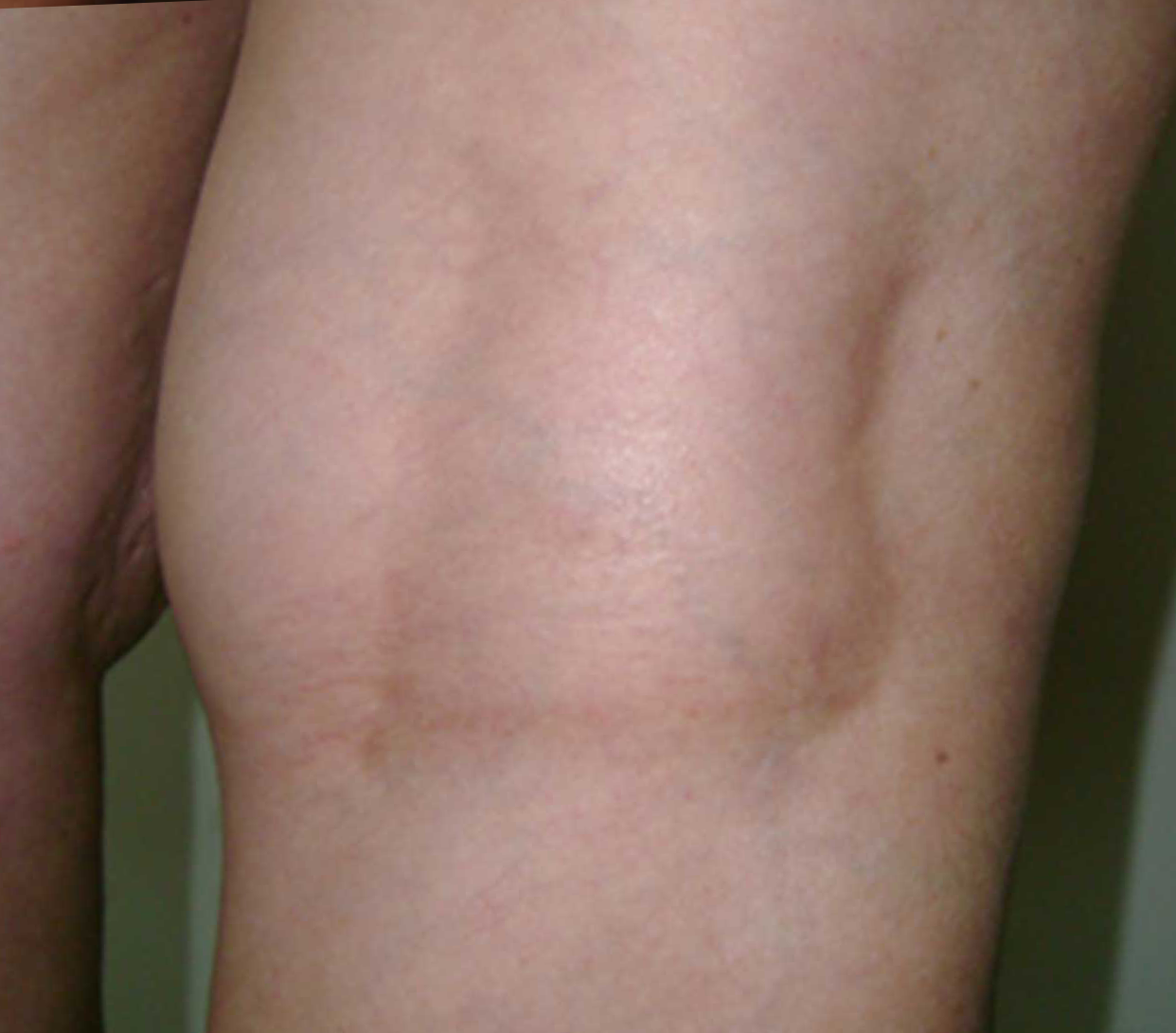 1-Vein-After-LongPulse