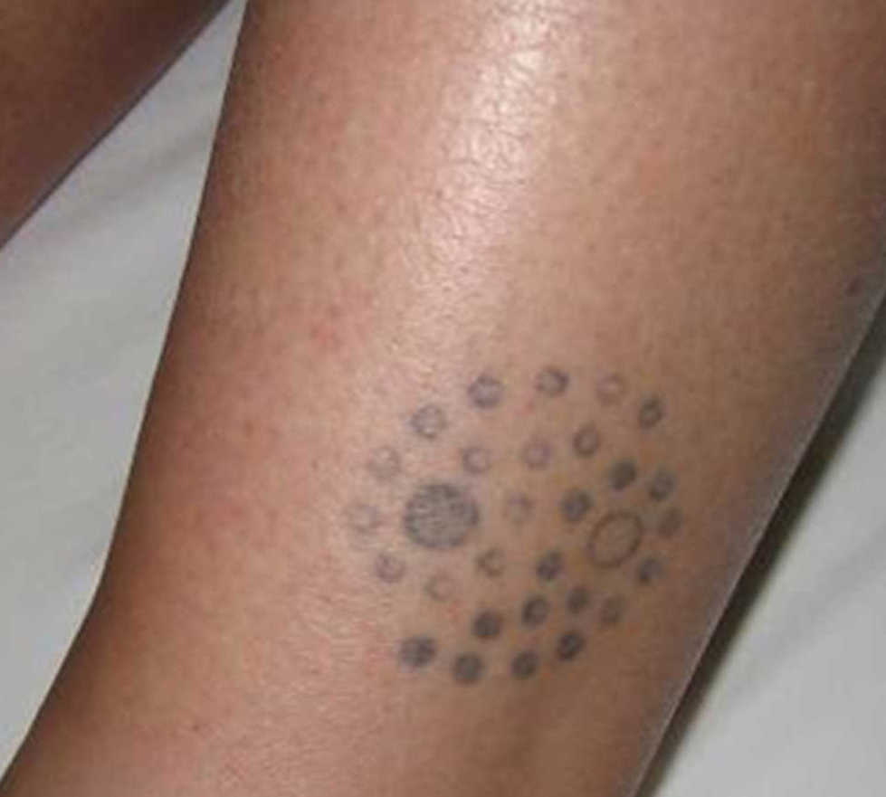 Tattoo removal the laser beautique for Post laser tattoo removal
