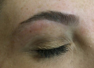3_brow_after