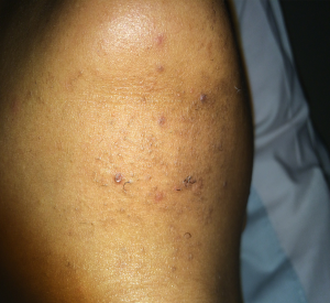 9-chin-ingrown-1session-after