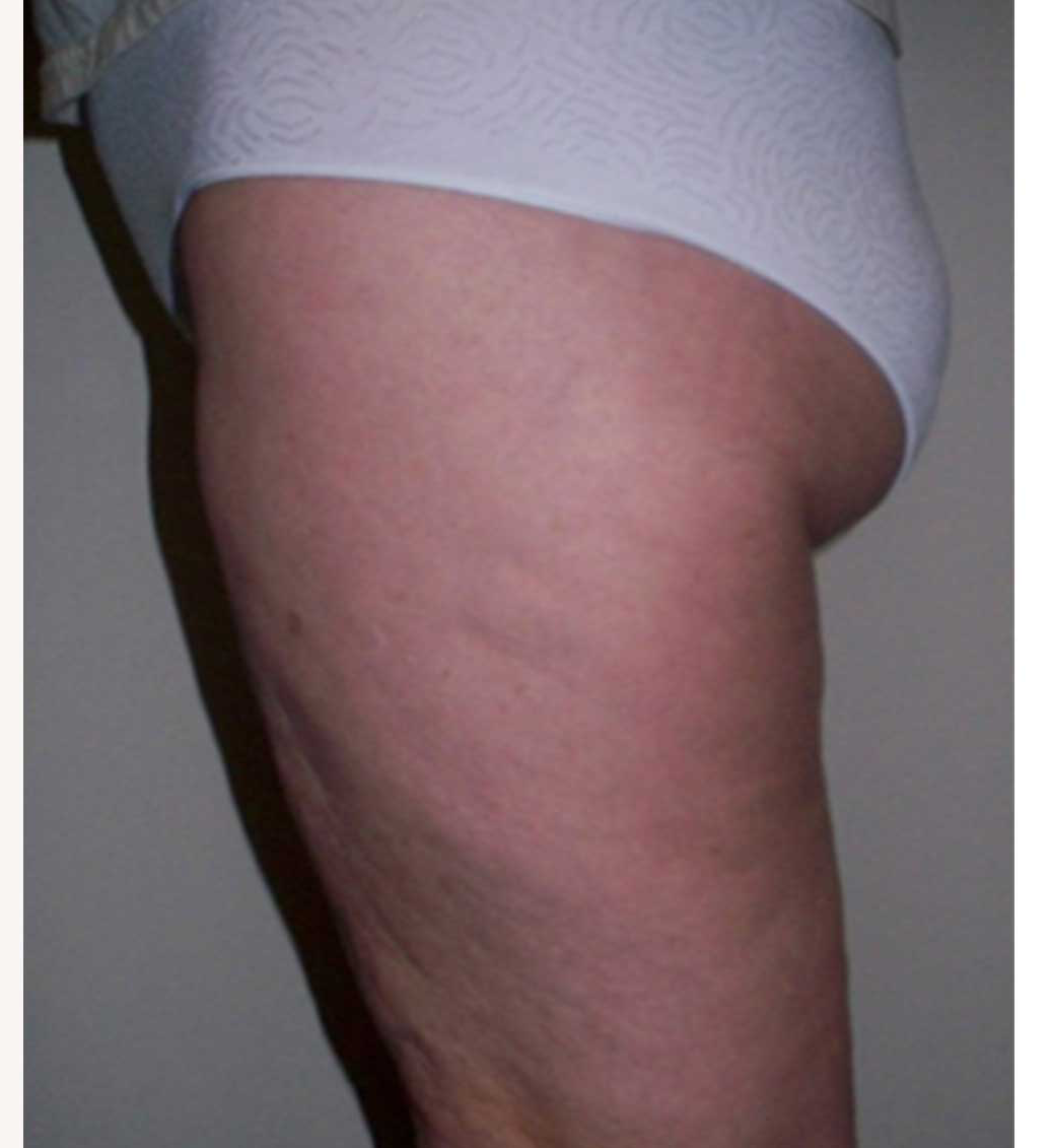 1-after-thigh