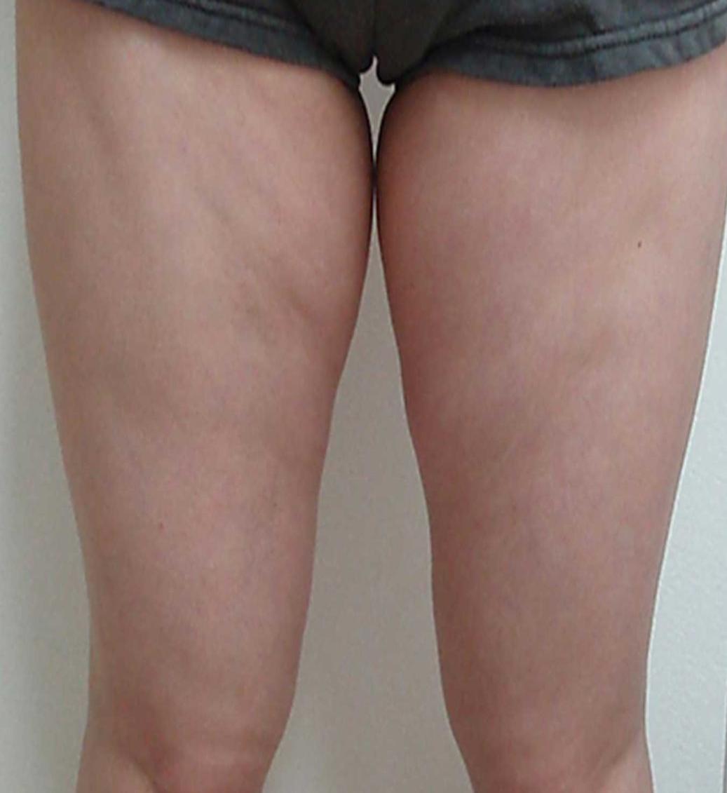 7-b4-legs
