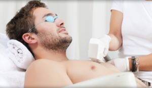 Laser Hair Removal For Dad!